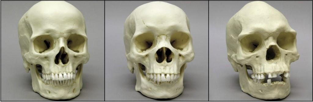 1-7-three-race-skulls